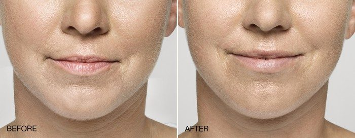 Dermal Filler Before and After Mouth - Anne Therese - Gahanna and Lewis Center, Ohio