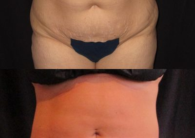 Smartlipo Before and After- Anne Therese - Gahanna and Lewis Center, Ohio