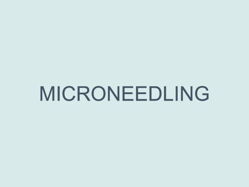 Microneedling - Anne Therese - Gahanna and Lewis Center, Ohio